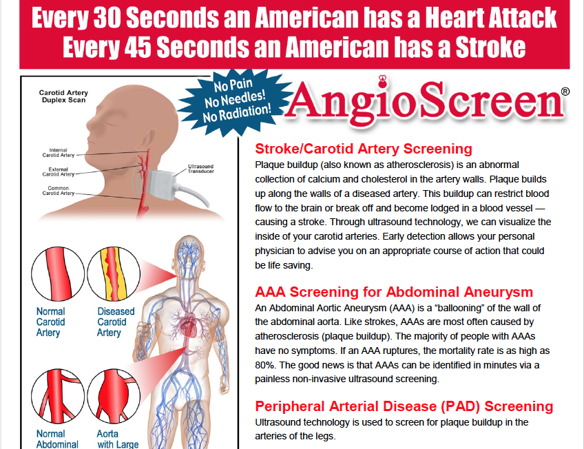 City of Spring Hill is offering Angioscreenings to City employees and the public on December 11, 201